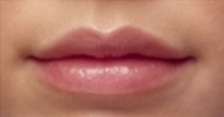 lipwoman